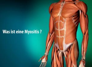 myositis_Video